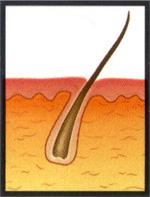 Regresivní fáze (tzv. catagen) trvá asi dva týdny. Během ní vlas přestává růst, ale ještě nevypadává. V této fázi se nacházejí asi 3 % chloupků.